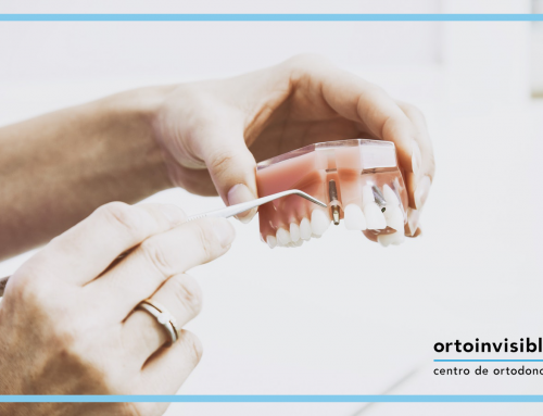 ¿Por qué implantes dentales?