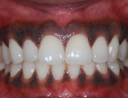 Estética dental: peeling gingival